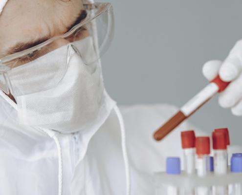 Muestras de sangre riesgo laboratorio equipamiento cromtek bioseguridad