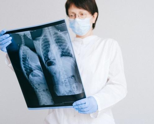 Cáncer de pulmón investigación medicamentos